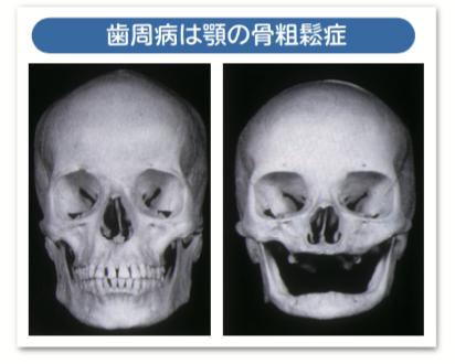 歯周病は顎の骨粗鬆症