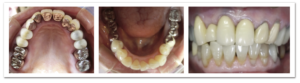 91歳の歯